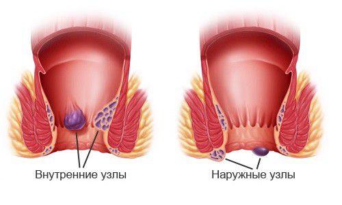 лечение гемороя