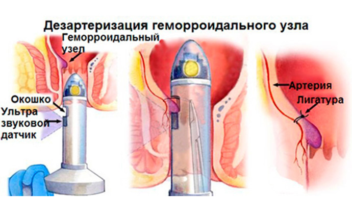 дезартеризация геморроидальных узлов Киев